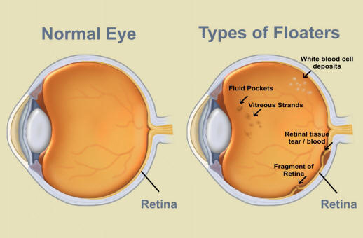Posterior vitreous detachment eye conditions subler eyecare troy